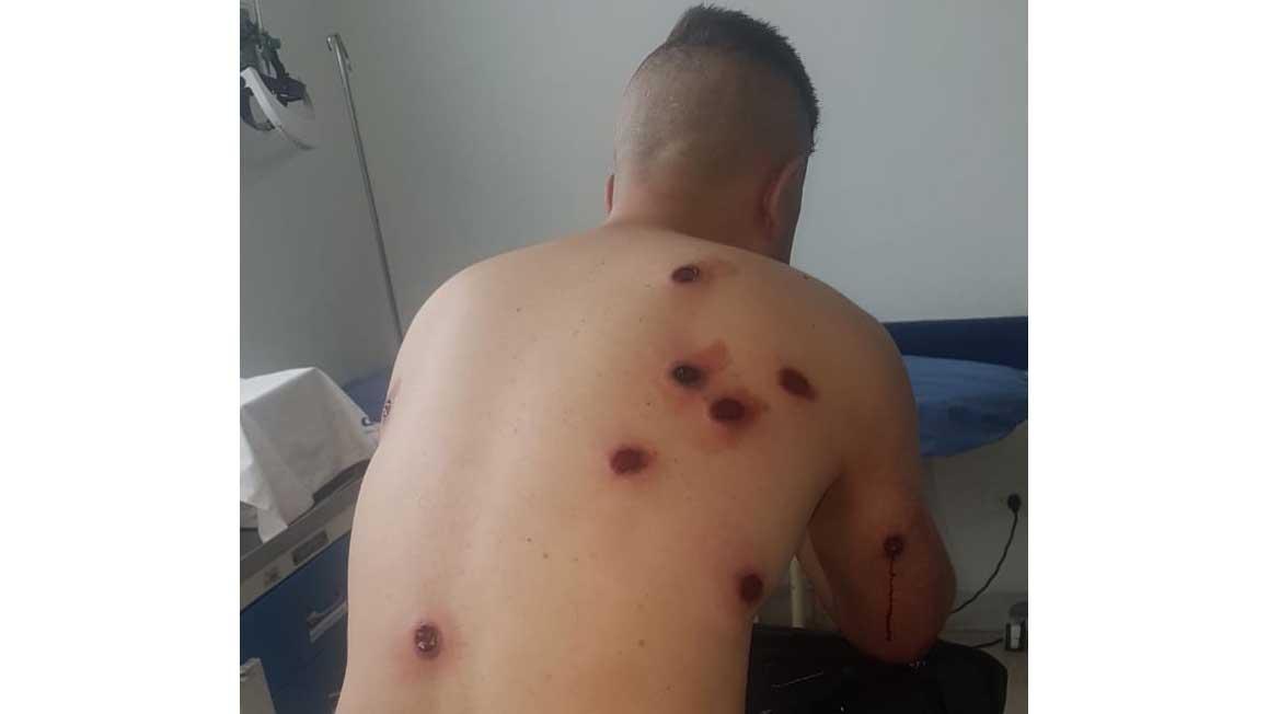 Capturan a Policía activo cuando intentaba asaltar a un ibaguereño en el  sector de El Vergel | ELOLFATO.COM - Noticias de Ibagué y Tolima