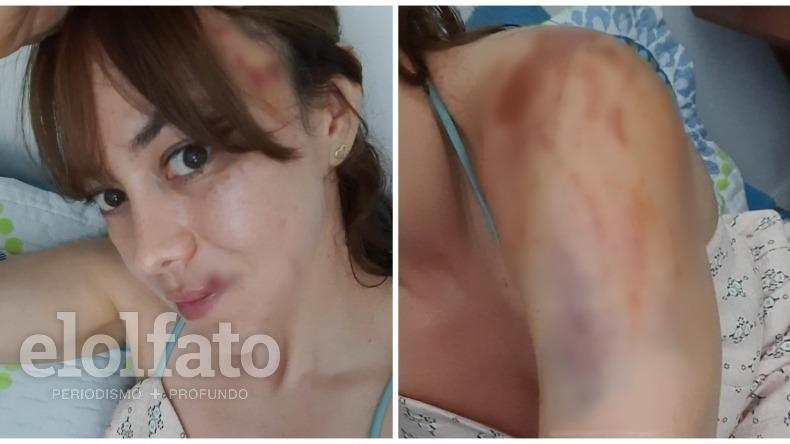 Imprudencia de motociclistas habría provocado graves lesiones a una conocida ciclista de Ibagué