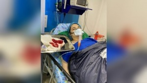 Sobreviví a más de 40 síntomas con la enfermedad de los implantes mamarios: periodista de Ibagué