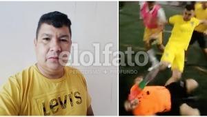 Árbitro golpeado por jugadores enardecidos en Ibagué hace un llamado a la tolerancia